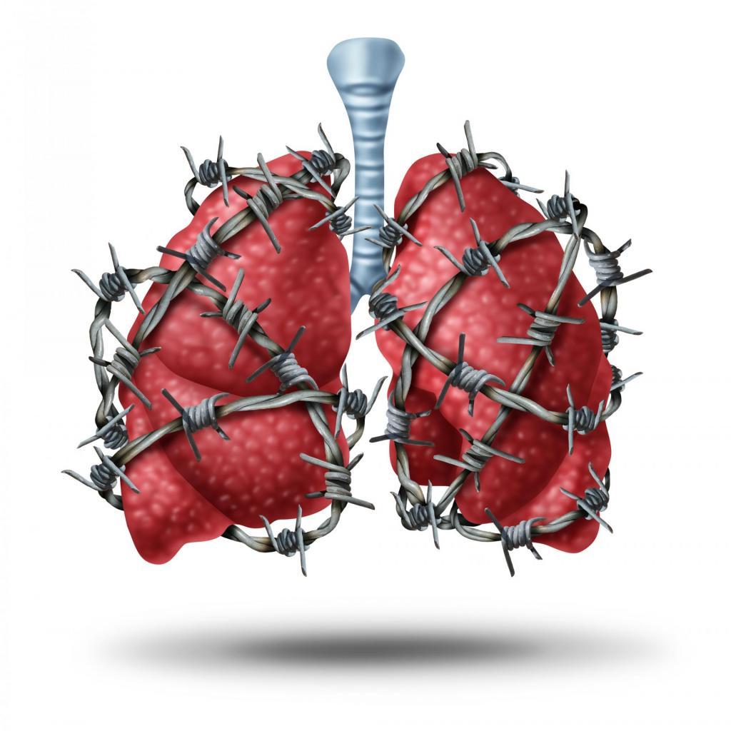 zator płucny