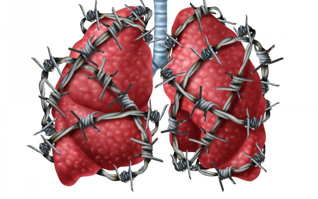Zator płucny – cichy zabójca