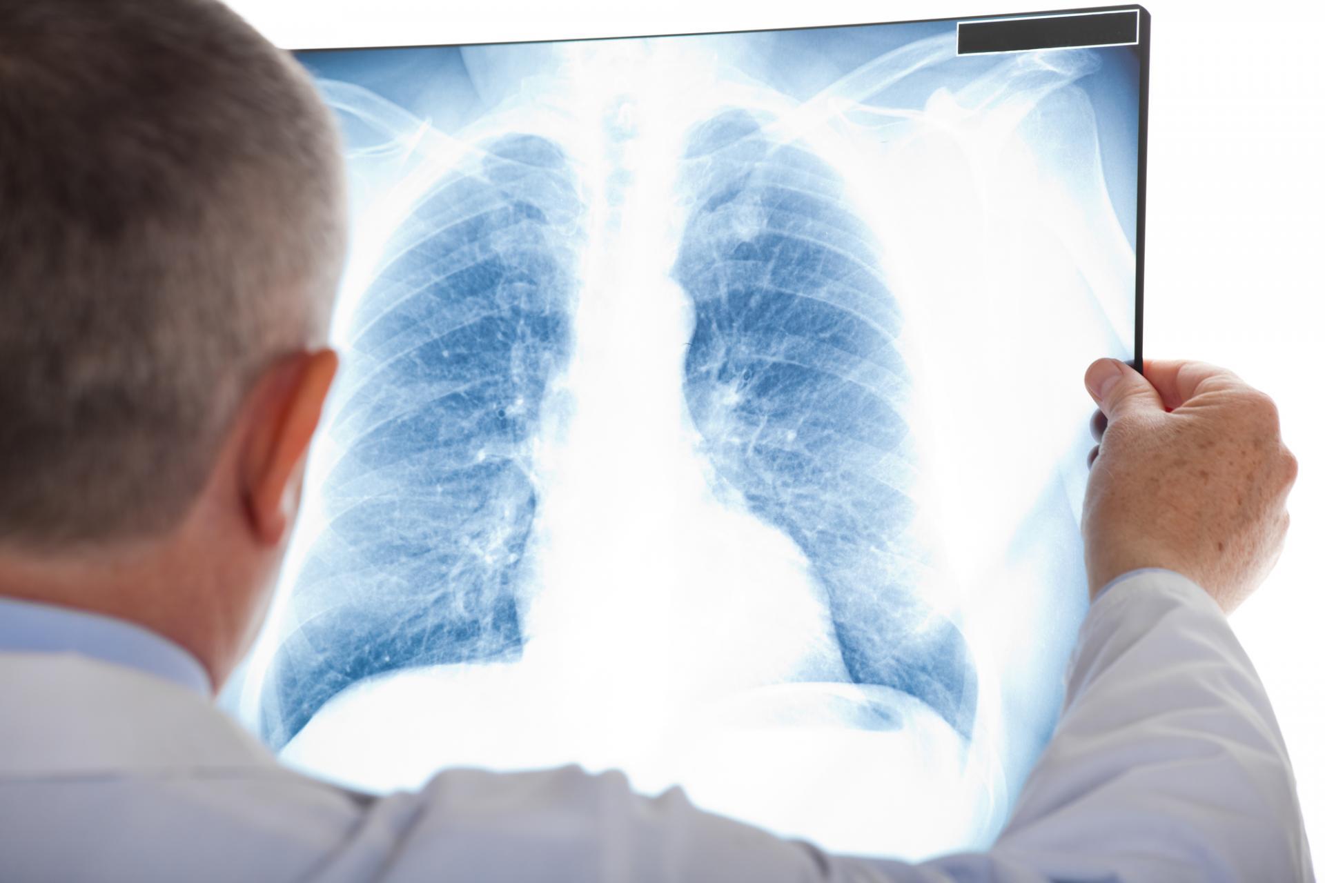 zator płucny objawy